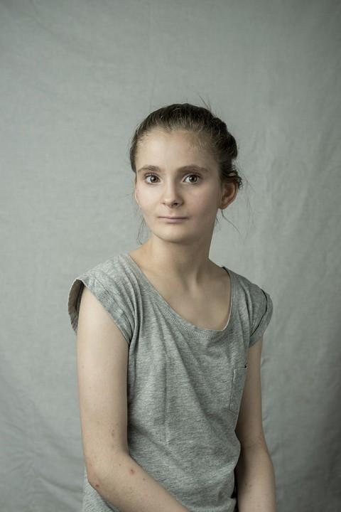 Portraits de peaux